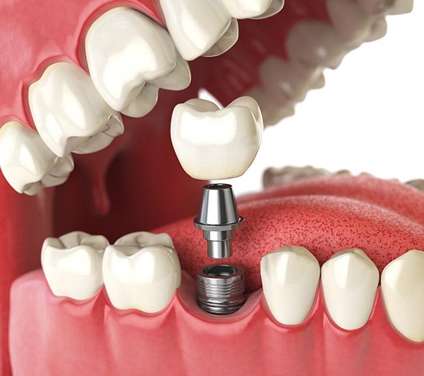 San Diego Will I Need a Bone Graft for Dental Implants