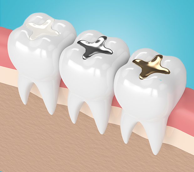 San Diego Composite Fillings