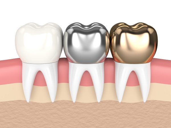 What Your Dentist Wants You To Know About Natural Looking Dental Crowns