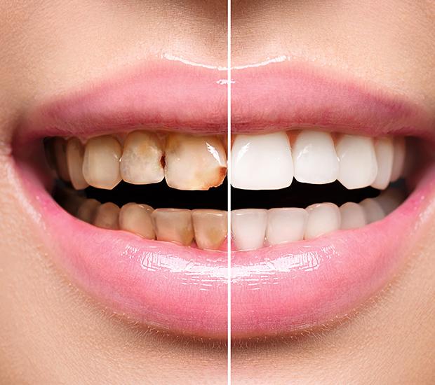 San Diego Dental Implant Restoration