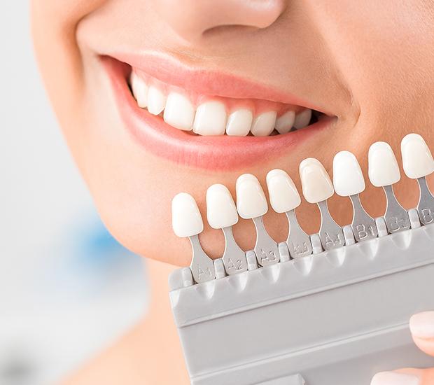 San Diego Dental Veneers and Dental Laminates
