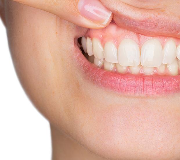 San Diego Gum Disease