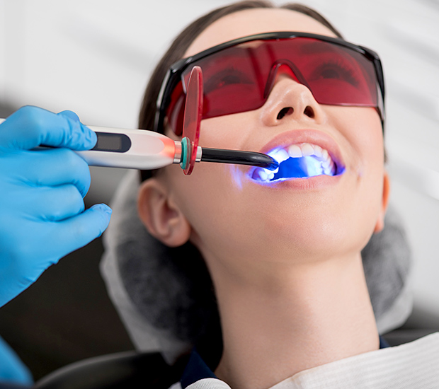 San Diego Professional Teeth Whitening